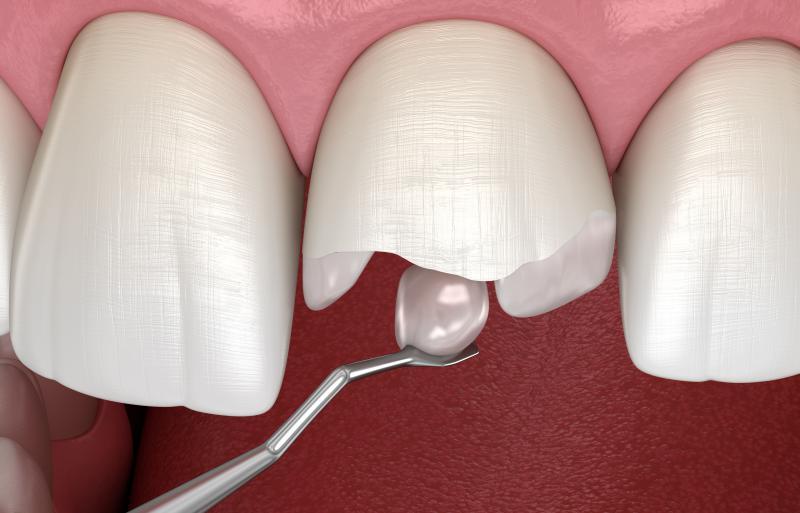 Реставрация зубов в Ростове-на-Дону, цена реставрации зубов в стоматологии Династия-С
