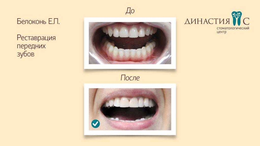 поставить красивые зубы